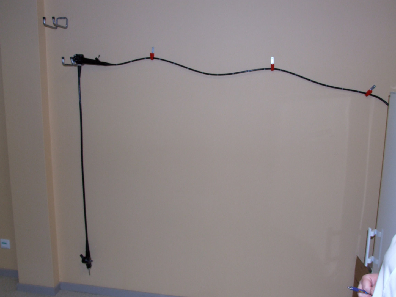 video gastroscope